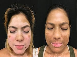 New Treatment Could Be Breakthrough For Vitiligo Skin Condition Vista Health Wellness